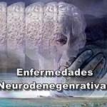 Enfermedades neurodegenerativas Párkinson y alhzéimer